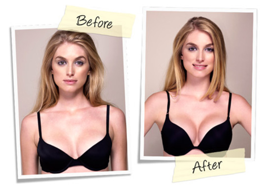 acade bombshell bra before and after pics